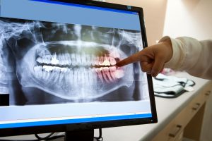 image for oral surgery