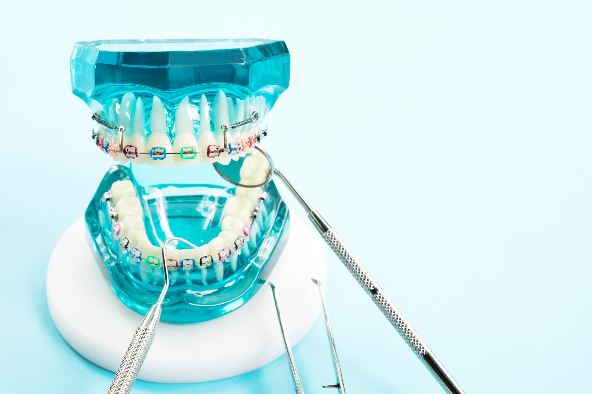 Helpful Tips For Using Rubber Bands With Braces Dental Signal