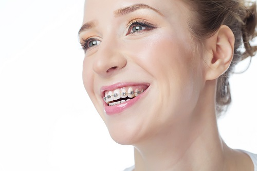 faq of orthodontics