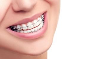 braces smile