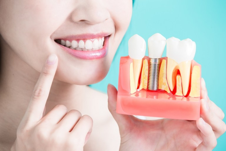 Woman holding dental model with implant and crown restoration